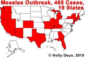 190412.measles.outbreak